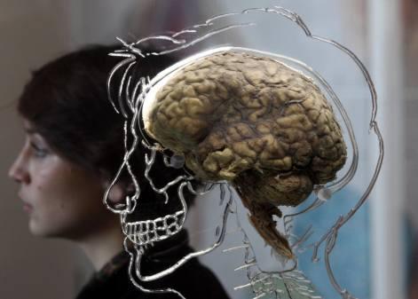 21890e-20120314-brain